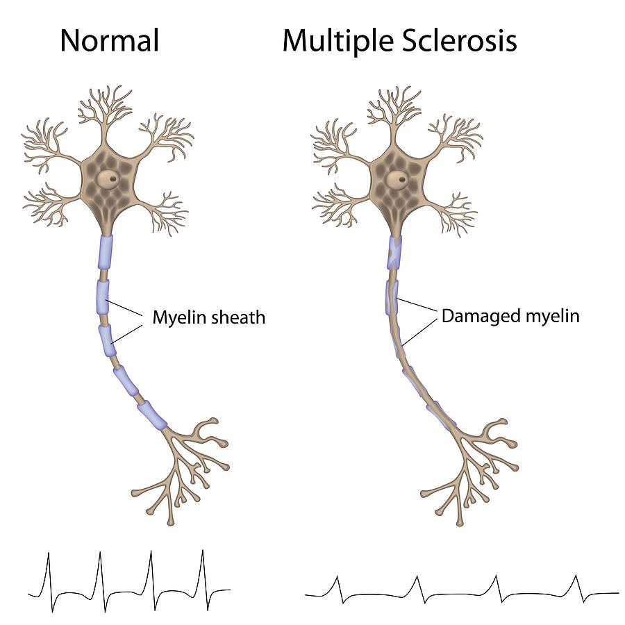 NEMOC_ALS_1_multiple-sclerosis