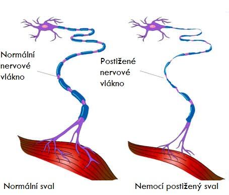 NEMOC_ALS_3_amyotroficka-lateralni-skleroza-priznaky-projevy-pricina-lecba-3